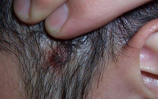 頭皮長『青春痘』,其實是毛囊炎