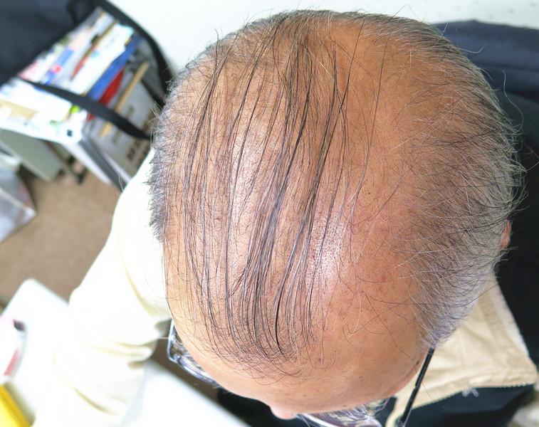 雄性禿困擾熟男 植髮機器人相助