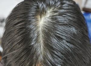 油性髮質應該如何護理?
